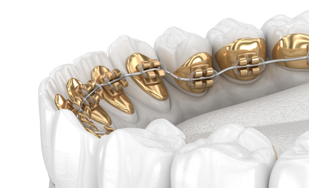 How Many People on the Gold Coast Get Braces Each Year