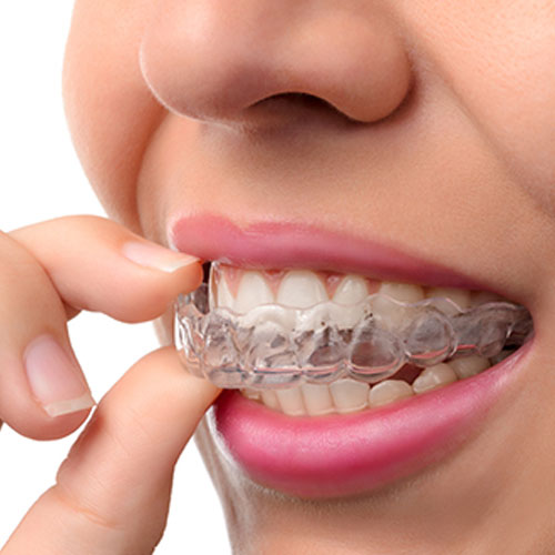 Choosing The Right Professional For Orthodontic Treatment
